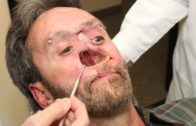Man with a hole in Face | Video